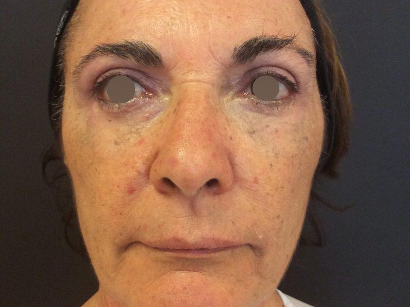 trattamento viso occhi dopo