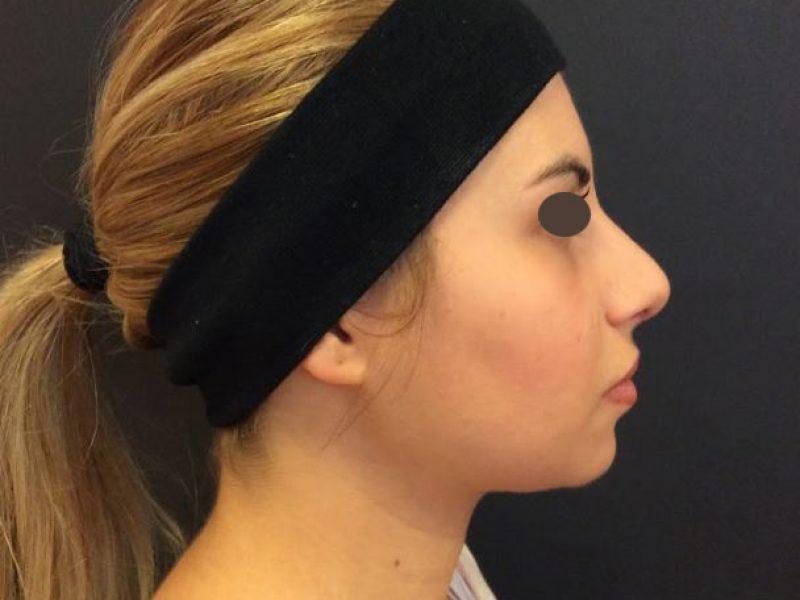 plastica naso dopo