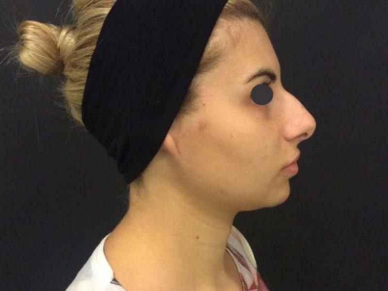 plastica naso prima