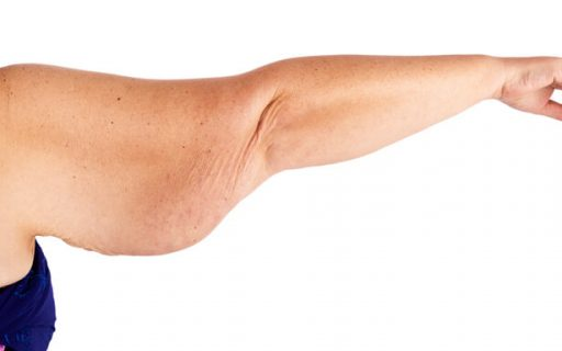 brachioplastica e lifting alle braccia