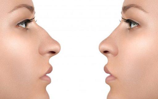Operarsi al naso